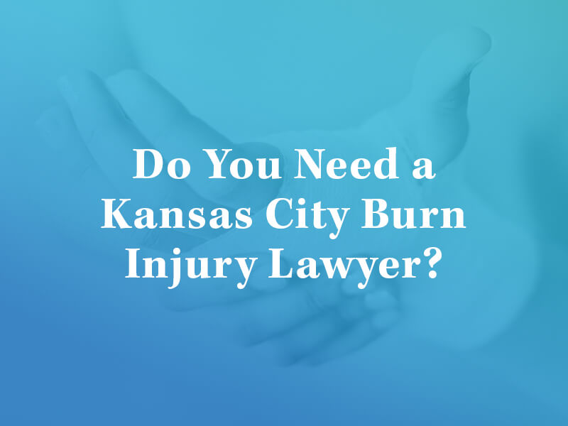 Do you need a Kansas City burn injury lawyer?