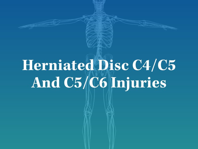 What Are Herniated Discs